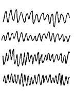 Basic EEG Rhythm Identification Rhythm > Frequency Component Alpha 8.