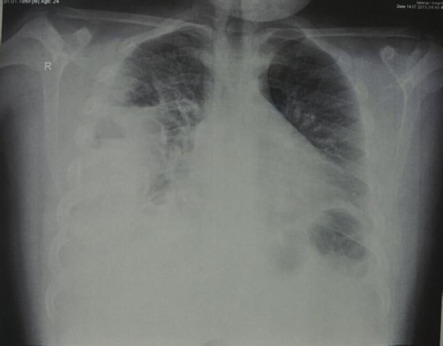 2 Case Reports in Pulmonology (a) (b) Figure 1: (a) Preoperative chest X-ray shows right sided obliteration of costophrenic angle and displaced right lung.