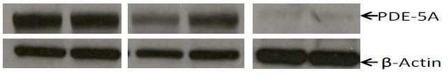 Expression of PDE-5 in s (A) Western blot analysis showing knock-down of PDE-5 in s with