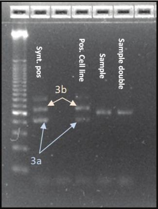 After hybridization and amplification of the specific template the finding was confirmed by agarose gel electrophoresis according to the length of the amplicon compared to positive-controls.