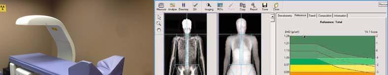 SCREENING Annual height measurement : loss of 2 cm or more Dual-energy x-ray absorptiometry Women age 65 and older and men age