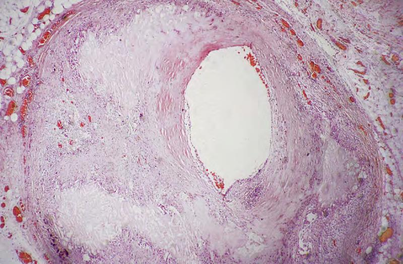 Atherosclerosis. There is significant narrowing of the lumen. Black stars: fibrous tissue in plaque.
