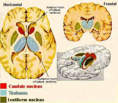 nuclei (gray matter) buried within the cerebral hemispheres that have primarily motor functions Best known components: Caudate