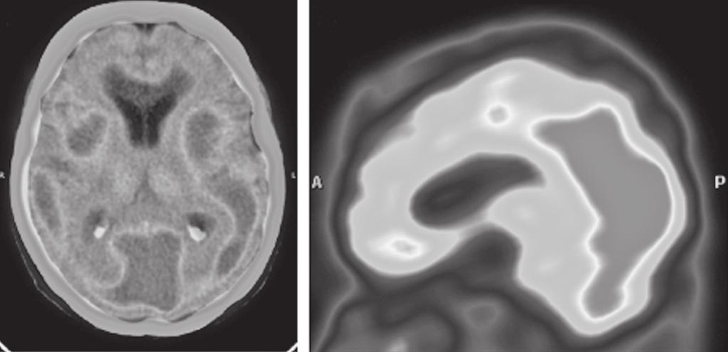 Behavioural variant frontotemporal dementia with dominant gait disturbances case report 333 A B Figure 2.