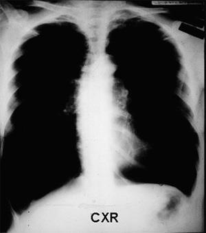 What is emphysema? There is permanent enlargement of the alveoli due to the destruction of the walls between alveoli.