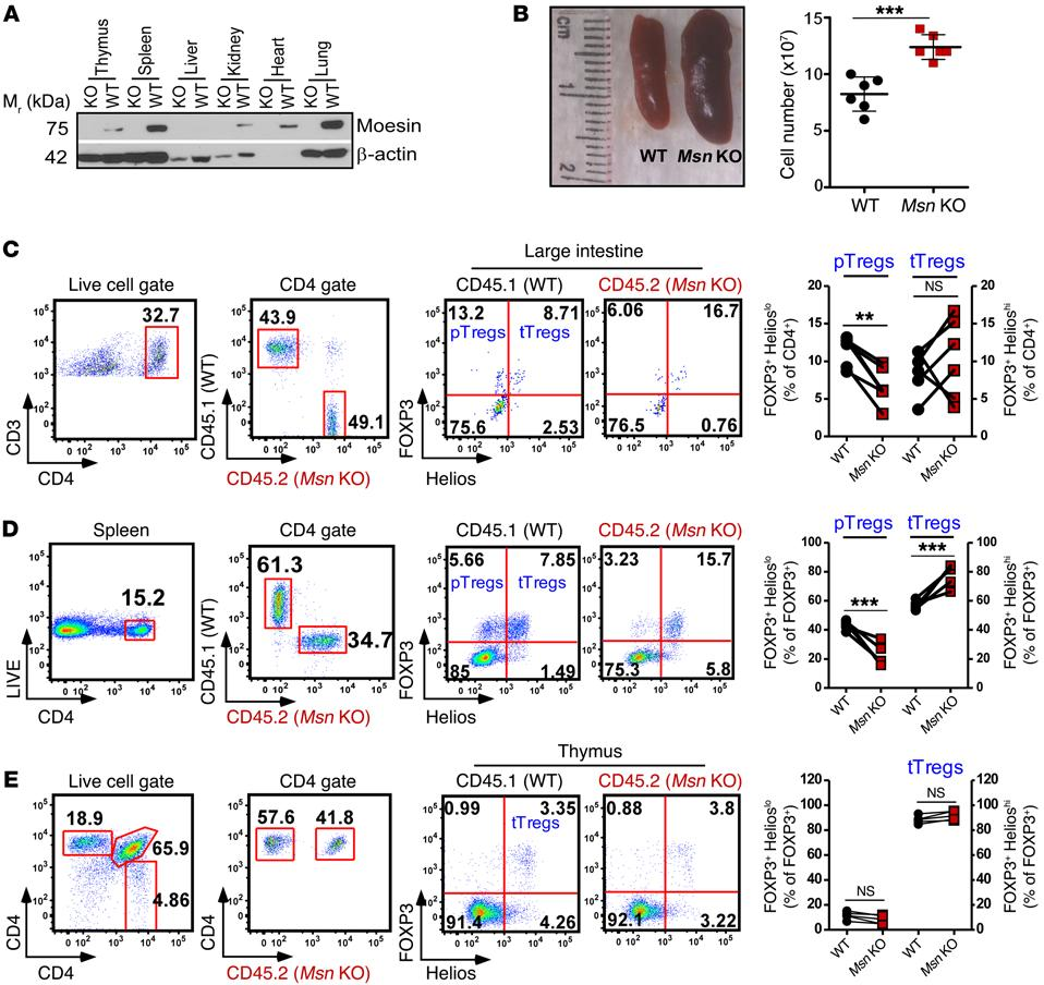 The Journal of Clinical Investigation Figure 3. Cell-intrinsic moesin controls ptregs but is dispensable for ttreg generation.