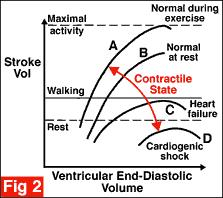 Stroke volume is determined by three main factors: preload, afterload and contractility. These will be considered in turn: Preload is the ventricular volume at the end of diastole.