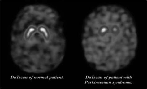 Parkinsonism REM sleep behavior disorder Neuroleptic sensitivity Occurs on a spectrum with Parkinson s disease When dementia precedes PD -> LBD When PD precedes dementia -> PDD, PAD Pathologic