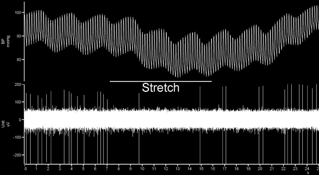 Some Real Data to Help Clarify the Baroreceptor Reflex The example below shows the effects of mechanically stretching one carotid artery in an experimental animal on blood pressure (top trace) and