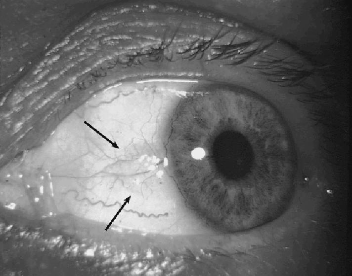 B. Intrauterine infections A. Rubella Cataracts (virus can survive for years in the lens) Congenital glaucoma Abnormalities of the iris (won t dilate) Pigmentary abnormalities of retina B.