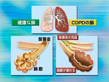 COPD Asthma is not usually considered as a form of COPD. Pure asthma symptoms can be reversed and COPD is permanent.