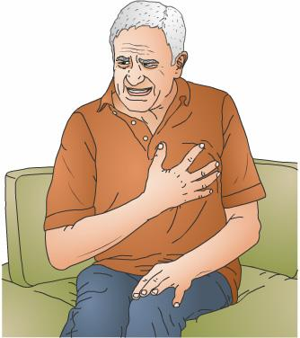 When the narrowing of the arteries is severe, blood flow may become fully blocked. This can cause a heart attack. Rarely, people can have completely clogged arteries without any symptoms.