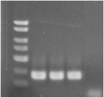 D. Pneumocystis jirovecii PCR Assay Interpretation For the analysis of the PCR data, the entire 20 µl PCR reaction should be loaded on a 1X TAE 2% Agarose DNA gel along with 10 L of Norgen s DNA