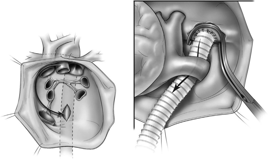 198 J.R. Doty and D.B. Doty Figure 14 An opening is made in the pericardial reflection posterior to the inferior vena cava.