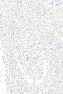 Left: Optimal staining result for HER2 of the breast ductal carcinoma no. 5 with a ratio of HER2 / chr17 of > 6.0.