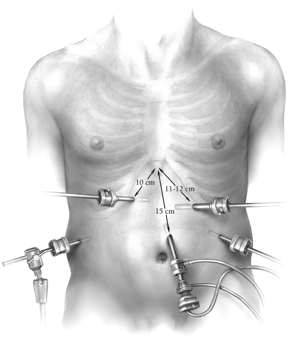 Laparoscopic Nissen fundoplication 219 Operative Technique Figure 1 A five-port (two 10-mm ports and three 5-mm ports) technique is used.