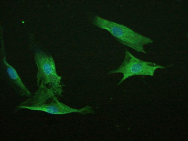 Immunofluorescence staining of F-actin in