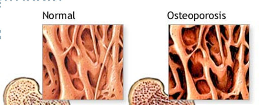 Osteoporosis Most common