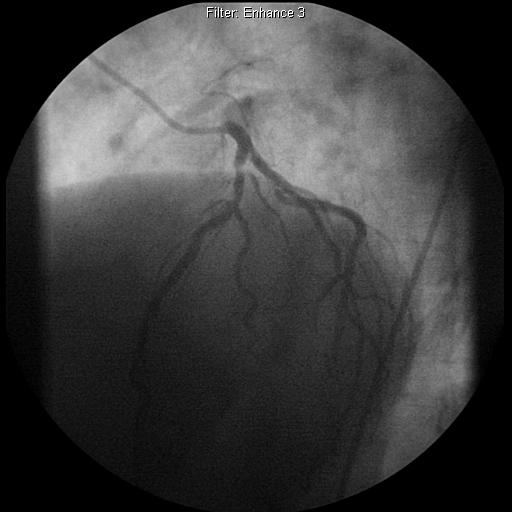 Our patient RG: Additional view of left coronary artery branches on coronary angiogram LCx Green