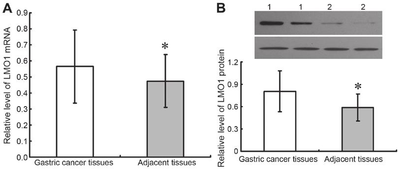 6514 SUN et al: ASSOCIATION OF LMO1 AND GASTRIC CANCER Table II. Relationship between LMO1, Bcl 2, Bax proteins and biological characteristics of gastric cancer patients.