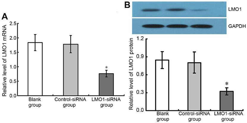 6516 SUN et al: ASSOCIATION OF LMO1 AND GASTRIC CANCER Figure 4. Expression of LMO1 mrna and protein in gastric cell lines.