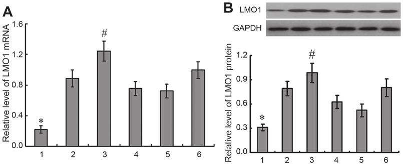 It was demonstrated that there was higher expression of LMO1 in gastric cancer cell lines than in GES 1 cells, and highest expression of LMO1 gene was detected in MKN45 cells.