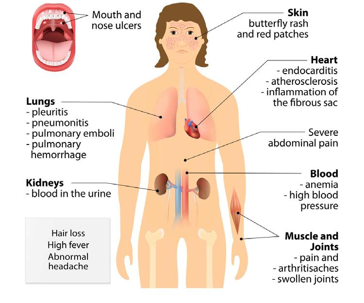 Symptoms Systemic lupus erythematosus can