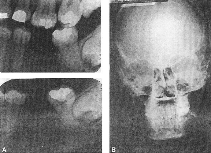 The patient presented with a complaint of pain in the left posterior maxilla. Clinical examination revealed drainage from the buccal sulcus around tooth no.