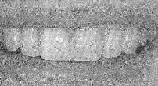 48. Can the newer all-ceramic materials with high strength values be used in place of metal-ceramic restorations?