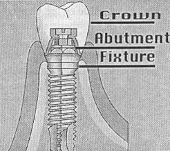 112. Describe the components of an implant and the clinical procedures used with each.