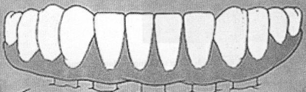 126. What is the fixed high-water prosthesis on an edentulous arch?