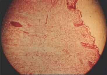 The epidermis is almost entirely dehydrated and soaling. The upper layer of the dermis shows slight thermal coagulation.