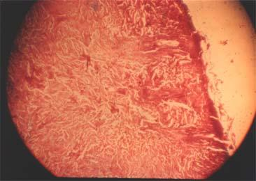 There is active epithelial regeneration and there is still some superficial debridement of the upper layer of the dermis.