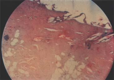 Histopathological changes 1 hour after thermal burn: The epidermis is almost entirely dissected from the underlying dermis. The upper layers of the dermis definitely stain darker.