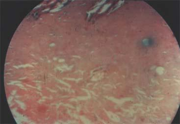 The numerous fragments of amorphous material arising from the thermally damaged dermis are invaded by an abundance of leukocytes.