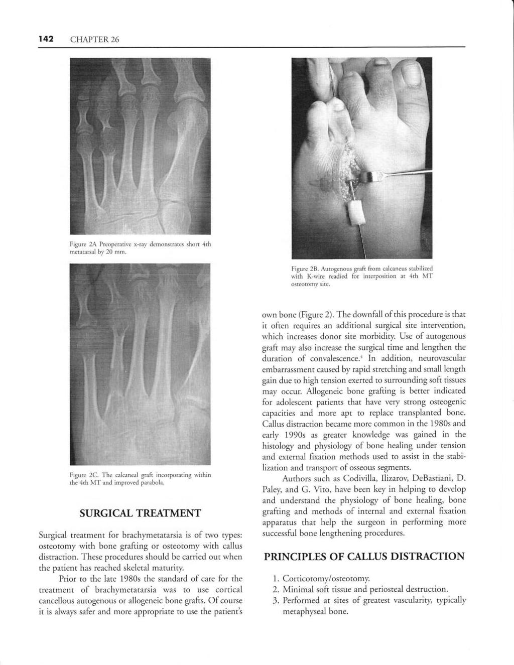 Famous X Ray Broken Jaw Wired Collection - Wiring Diagram Ideas ...