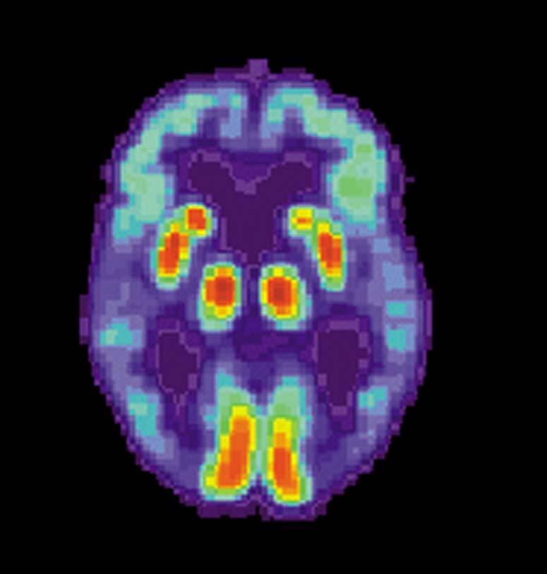 . PET scan of the brain of a person with AD