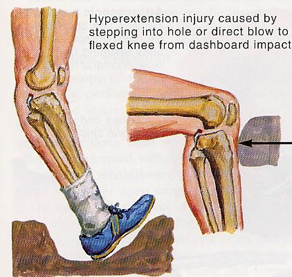 Evaluation of knee problems pdf pcl tear ccuart Images