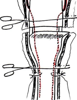 Obstetrics and Gynecology International 5 (a) Broad ligament Veins Artery Serosa Musculosa Mucosa (b) Figure 3: Section of the pathological cervix. Aseptic Phase.