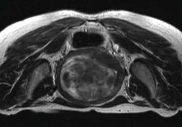 2 Obstetrics and Gynecology International 11 L 4cm (a) Figure 1: Patient screening MR images. (a) Axial T2-weighted image showing a heterogeneous fibroid, hyper intense relative to the uterine wall.