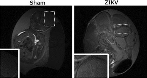 ZIKV IN CHICK EMBRYOS 1695 FIG. 4. Anatomical T 1 -weighted MRI images (Sham: left, ZIKV infected: right) of the same embryos as in Fig. 2.