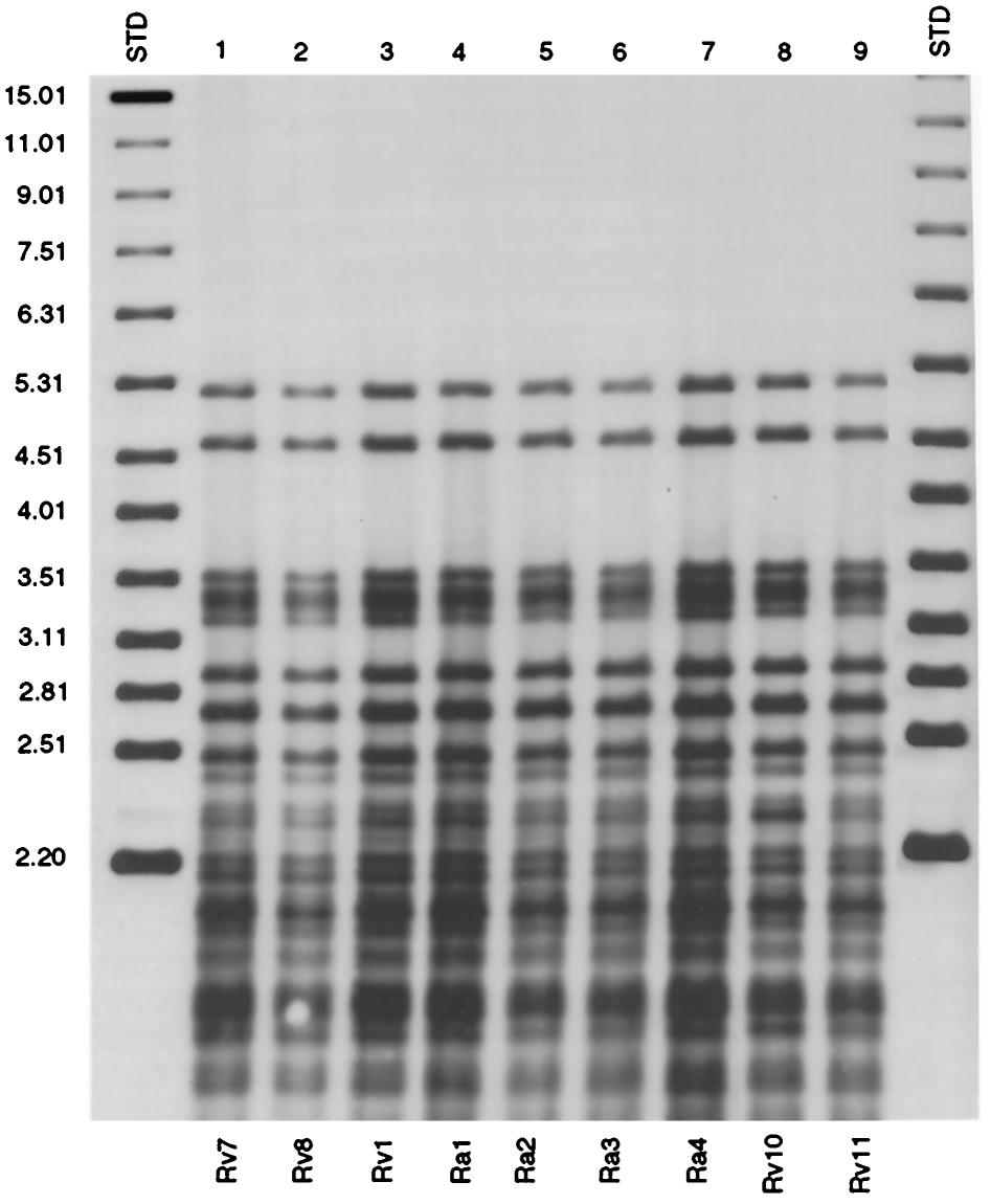 VOL. 38, 2000 H37Rv/Ra IS6110 GENOTYPING 3203 FIG. 4. Southern hybridization of AluII-digested chromosomal DNA with the PGRS probe for strains Rv 7,Ra 1, and five H37 polymorphic variants.