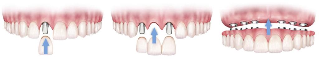 TYPES OF IMPLANT TREATMENT Because dental implants can be used throughout the mouth, they make it possible to restore as few or as many teeth as necessary.