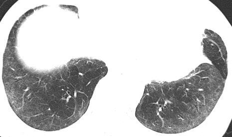 ground-glass opacity, related to interstitial inflammation Perivascular cysts: mid lung zones and
