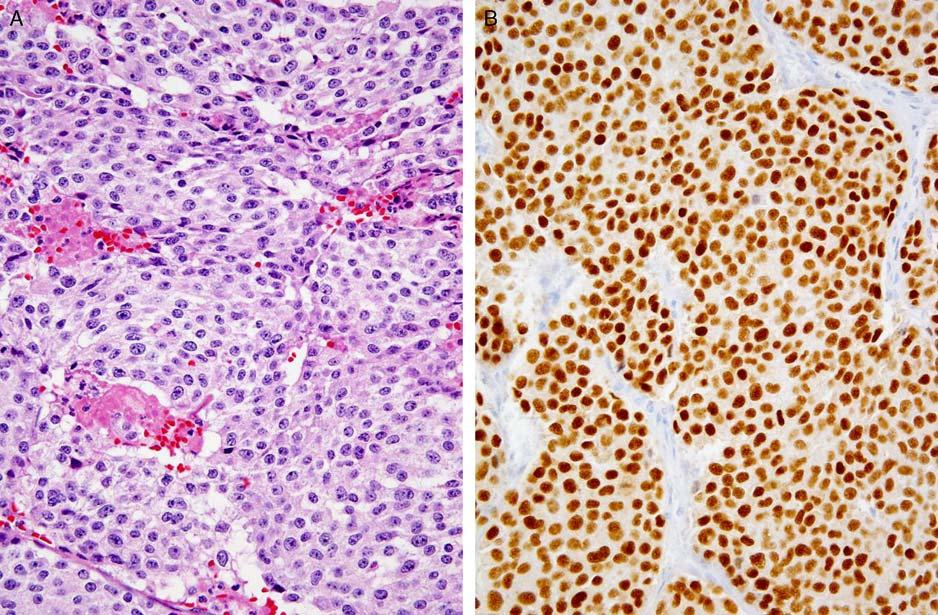 Adv Anat Pathol Volume 22, Number 3, May 2015 Immunohistochemistry in Carcinoma of Unknown Primary neoplasms in the metastatic setting (with the exception of medullary thyroid carcinomas, which are
