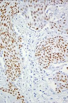 Lung squamous cell carcinoma P40