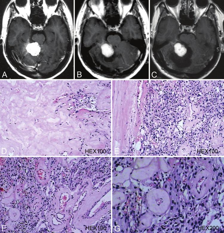 Analyses of benign tumors after failed GKS Fig. 5. A C: MR images obtained in a 55-year-old man in whom the first open surgery for a right tentorial meningioma failed.