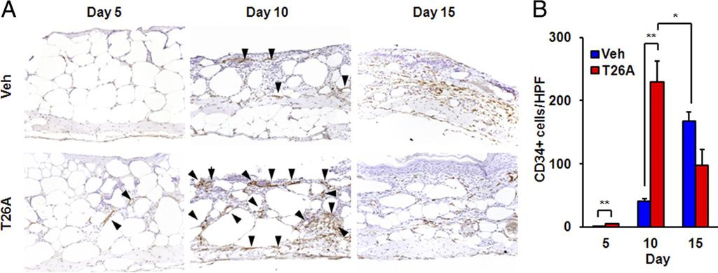 342 Syeda et al Figure 7. PGT regulates neovascularization in wounds. A: Representative photomicrographs of CD34-positive staining (arrowheads) of a pair of wounds of the same BKS.
