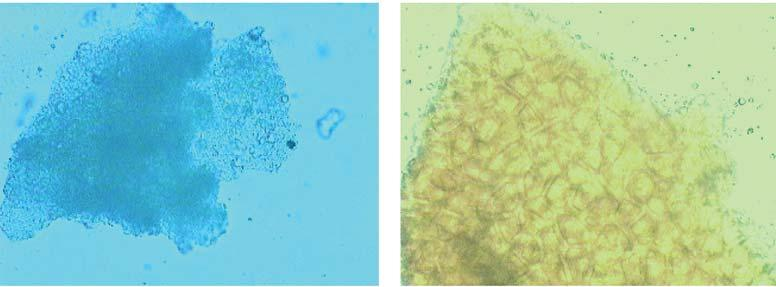 3 X40 Parenchyma cells with Fig.