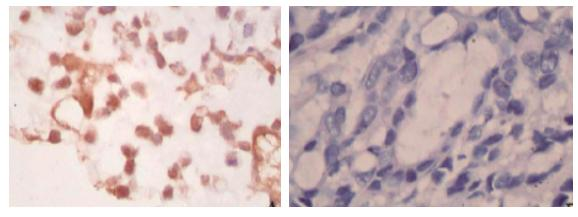 Results of immunohistochemistry assay Protein expressions of CD8, CTLA-4, CD80, CD86 and VEGF-A were exhibited as brown granules in cytoplasm (Figures -6).